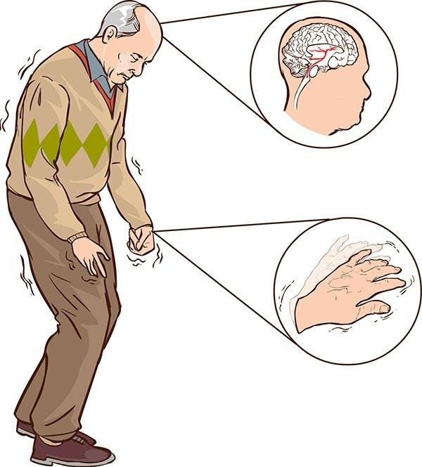 Đông y hỗ trợ Điều trị hiệu quả bệnh Parkinson