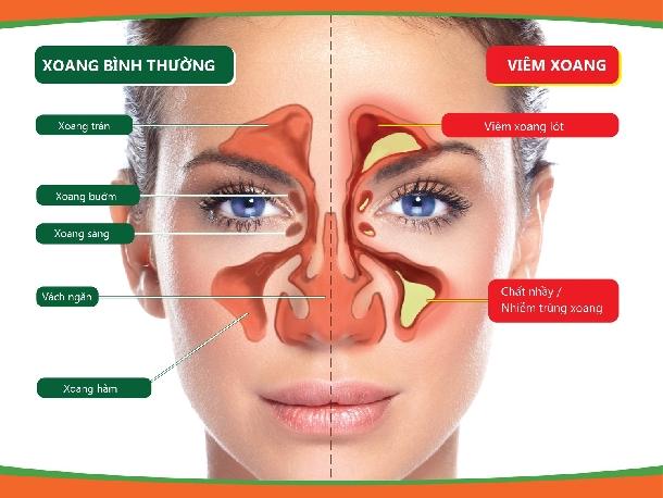 Phân biệt viêm xoang với viêm mũi dị ứng
