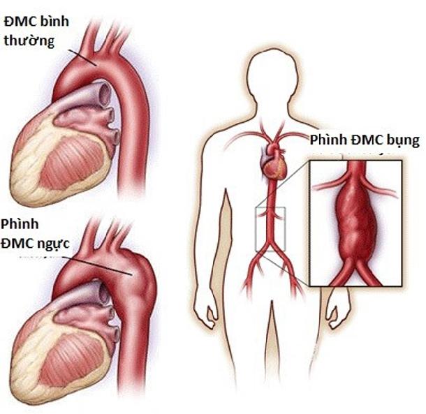 Biến chứng nguy hiểm của Huyết áp cao