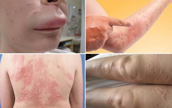 Bệnh ngoài da