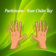 Loại bỏ Parkinson bằng Đông y tại nhà